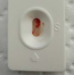 Das ist zu wenig Blut